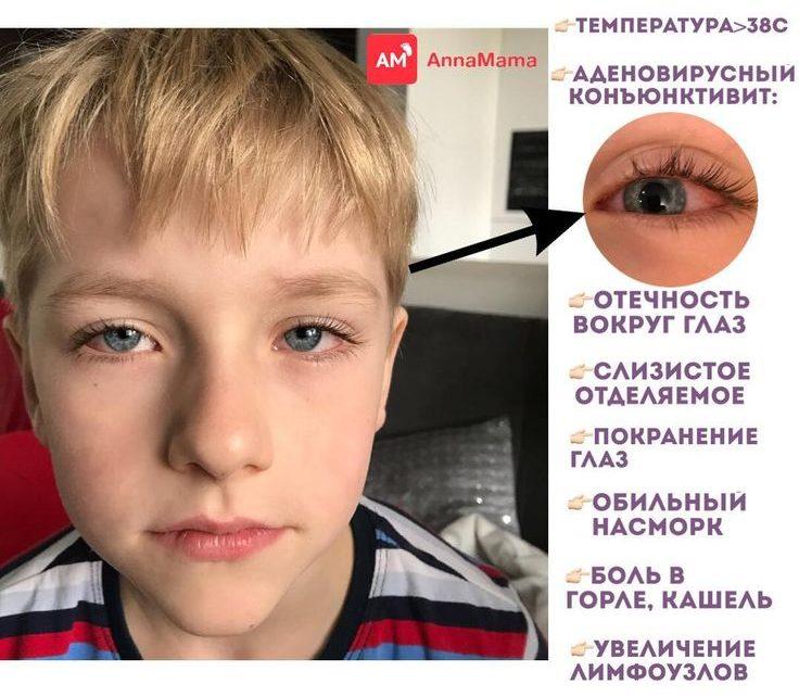 аденовирусный коньюктевит