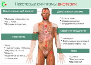 симптомы дифтерии