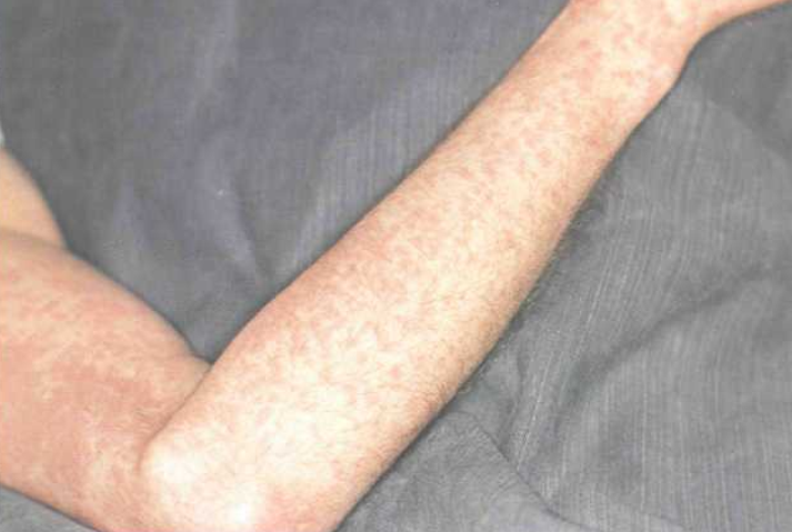ангина при инфекционном мононуклеозе