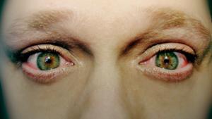 вирус слезятся глаза