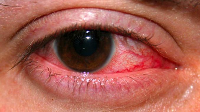 вирус слезтся глаза